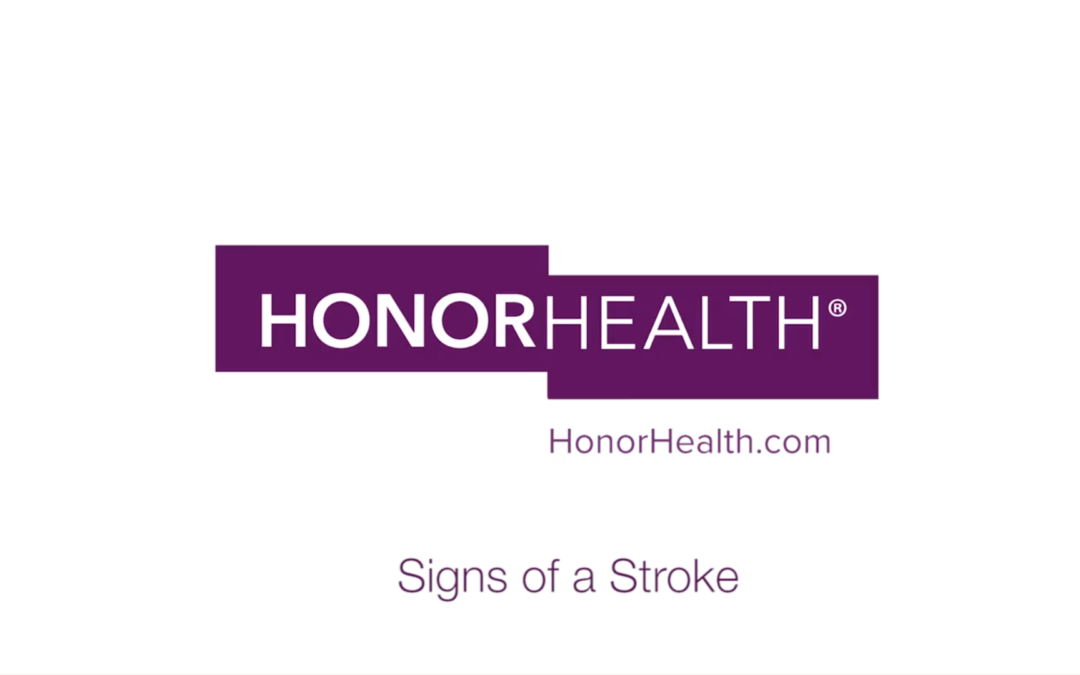 Signs of a Stroke – HonorHealth